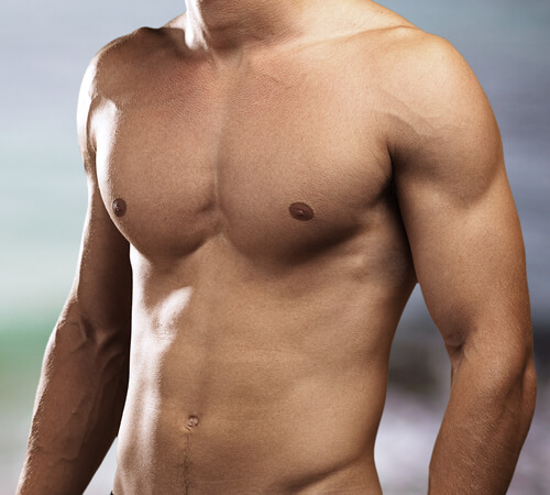 vergrößerte Brustdrüsen - Auslöser